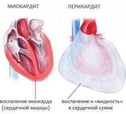 Инкубационный период коксаки: сколько длится и как проявляется болезнь в дальнейшем |