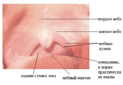 Инфекционная болезнь глаз у детей