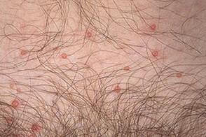 Моллюски на коже заболевание