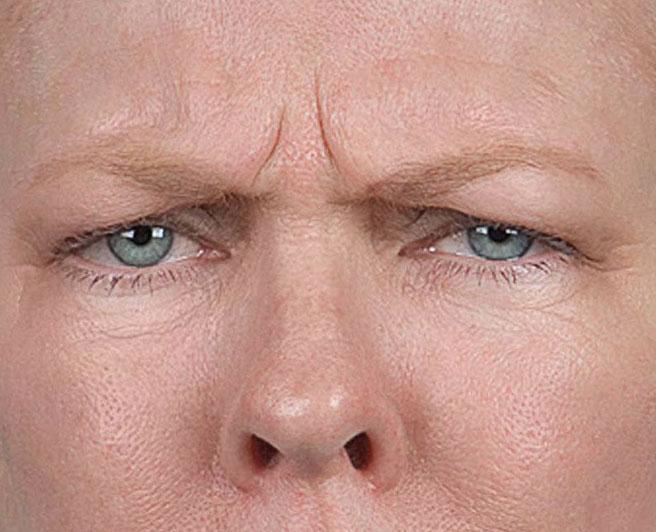 почему появляются морщины под глазами