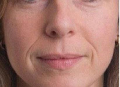 упражнения для разглаживания морщин на лице видео