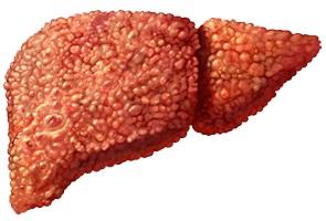 когда повышенный холестерин какие симптомы