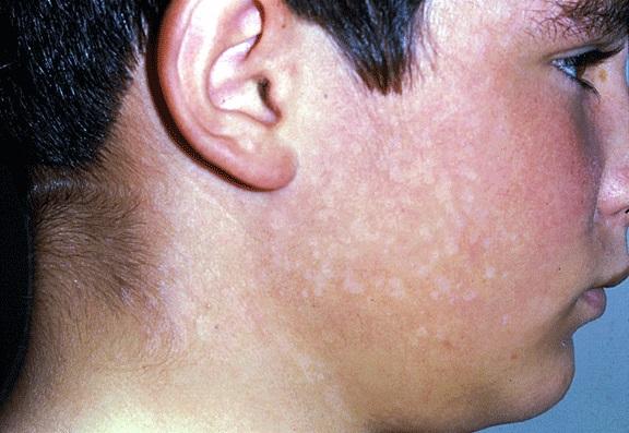 Отрубевидный (разноцветный) лишай – фото (как выглядят пятна на коже), причины и симптомы, диагностика