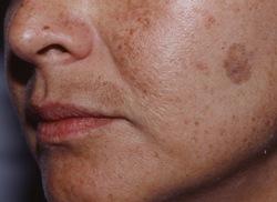 фторокорт от пигментных пятен на лице