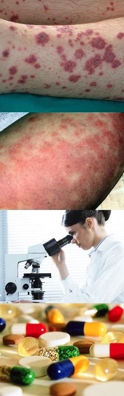 Васкулит обзор заболевания и методов его лечения