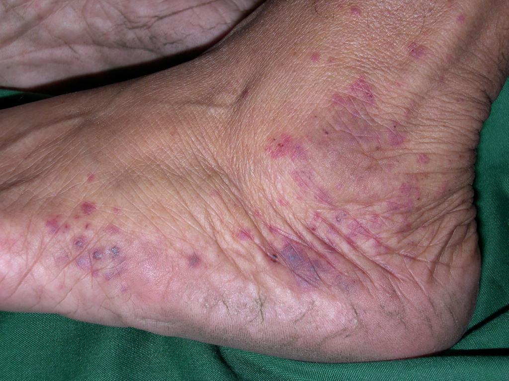 пигментный дерматоз шамберга фото
