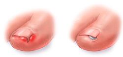 Врач по ногтям - как называется и к кому обращаться для лечения грибка