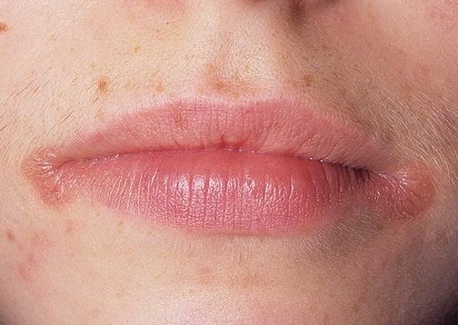 Чем прижечь заеду на губах