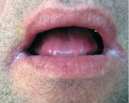 Раздражение около рта у взрослого