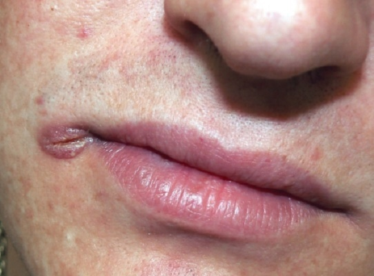 шанкр в углу рта